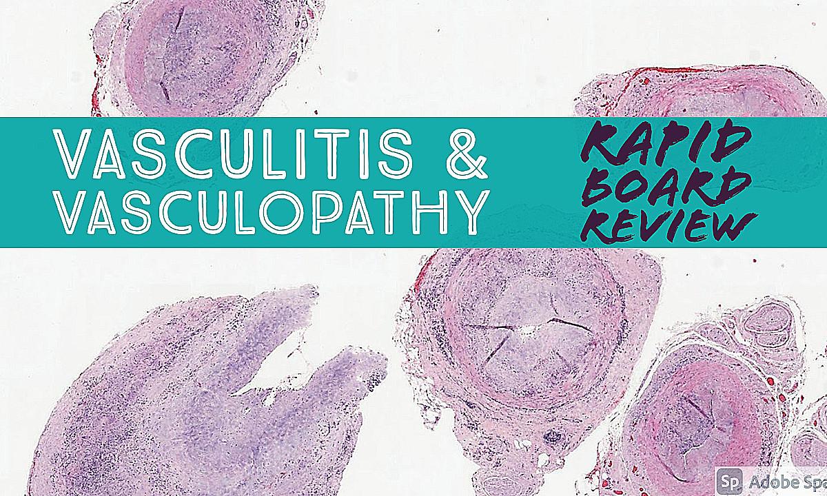 KiKoXP | Rapid Board Review: Vasculitis & Vasculopathy (video)